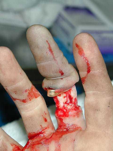 Содрана кожа с пальца сильно
